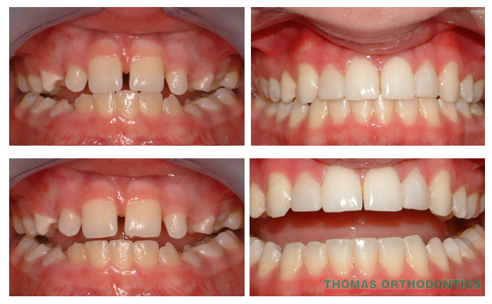 Naperville Braces Before And After Thomas Orthodontics
